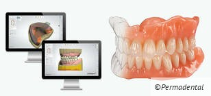 EVO-Denture – ein digitales Highlight in der Totalprothetik