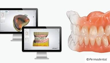 EVO-Denture - ein digitales Highlight in der Totalprothetik