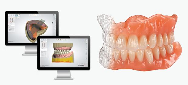 EVO-Denture – ein digitales Highlight in der Totalprothetik