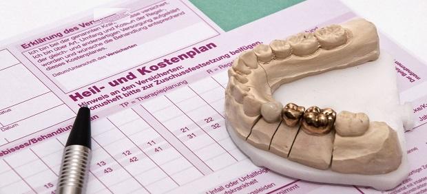 Implantat gestützter  Zahnersatz bei Senioren: Die optimale Planung inklusive Genehmigung und Abrechnung